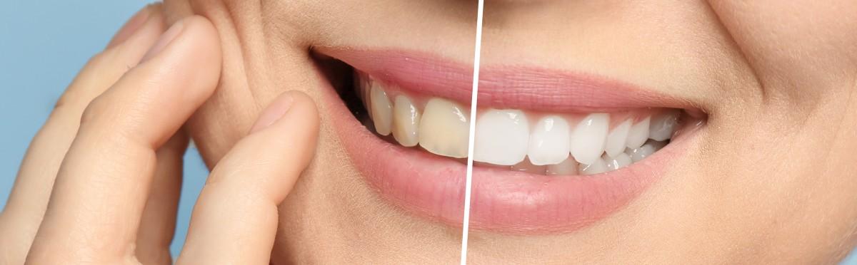 Zahnarzt Praxis Paßlack - Bleaching-02