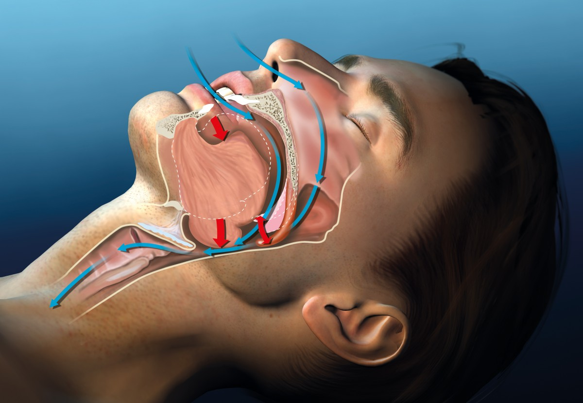 Zahnarzt Praxis Paßlack - Schnarchtherapie-02