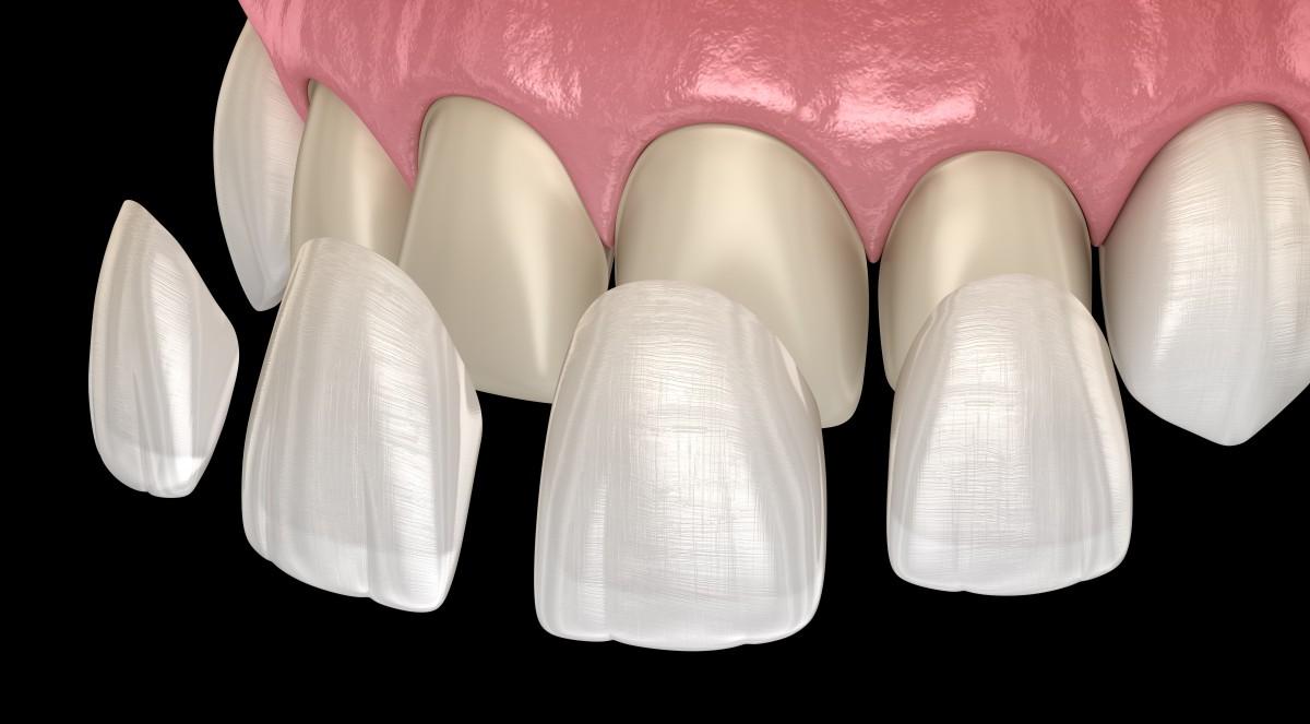 Zahnarzt Praxis Paßlack - Veneer-02