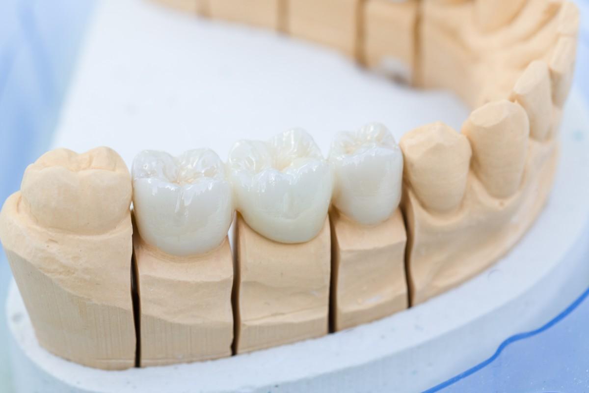 Zahnarzt Praxis Paßlack - Zahnersatz-02
